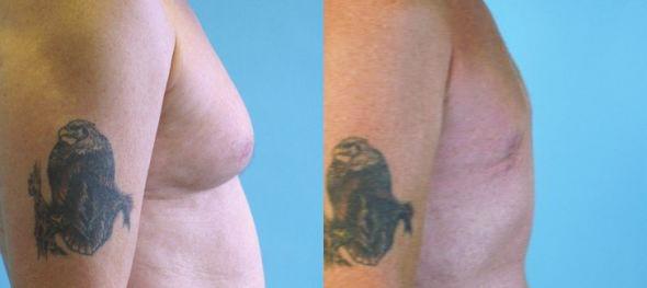 Tretman ginekomastije kod muških grudi liposukcijom prije i poslije
